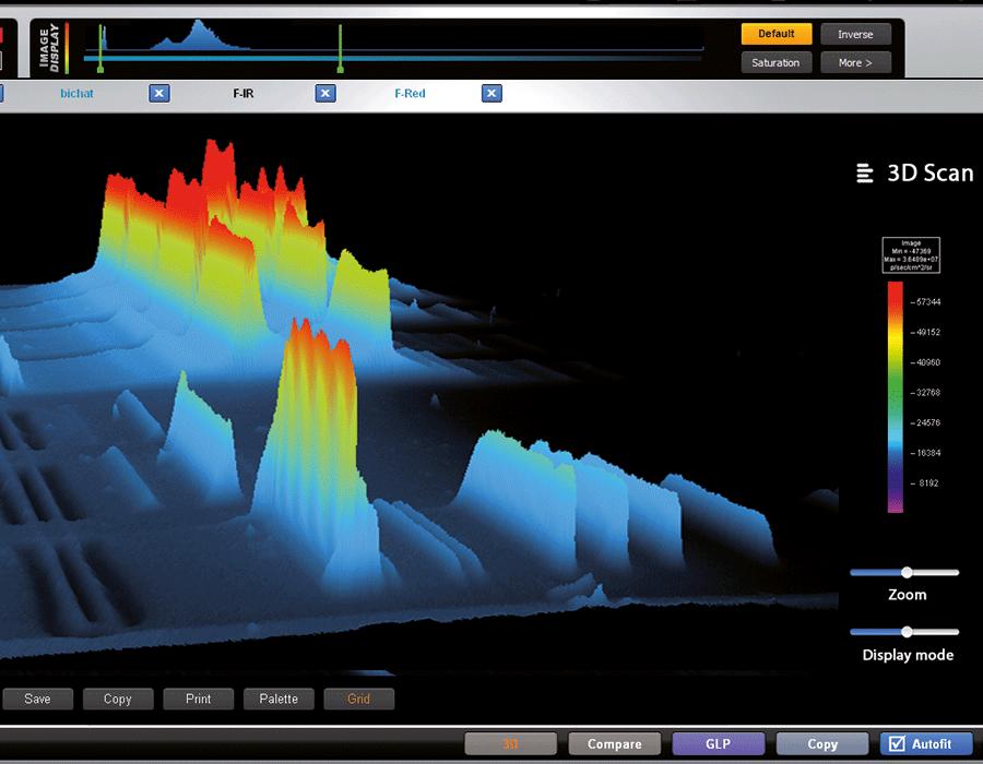 Fusion - 3D dynamic scan