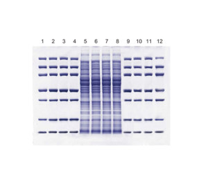 SurePAGE precast gels - High resolution & Robust separation